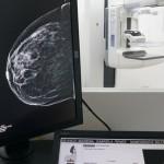 Mamógrafo-Tomosíntesis