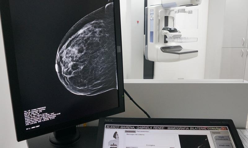 La tomosíntesis detecta precozmente el cáncer de mama