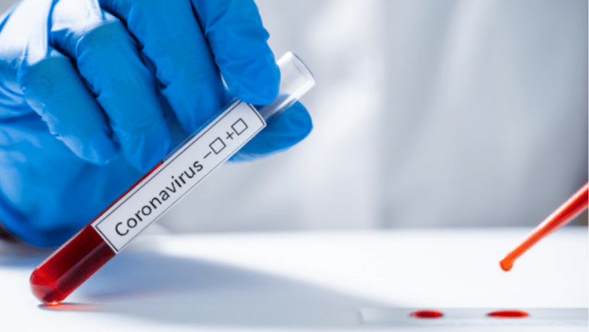 Coronavirus: verdades, mitos y recomendaciones de prevención